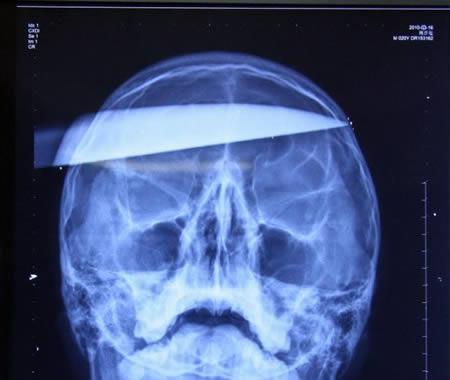μαχαίρι ακτινογραφία κρανίου επίθεση σε Ειδικευόμενη eidikeuomenoi iatroi