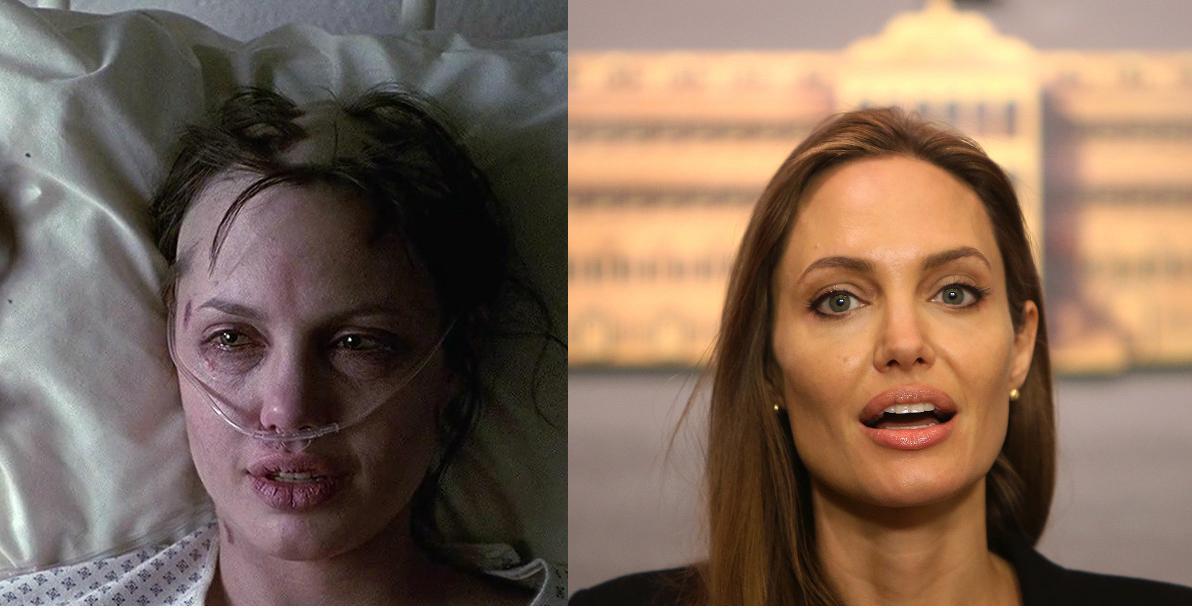 Angelina Jolie ασθενής από την ταινία Gia και σε μια ομιλία για την υγεία της.