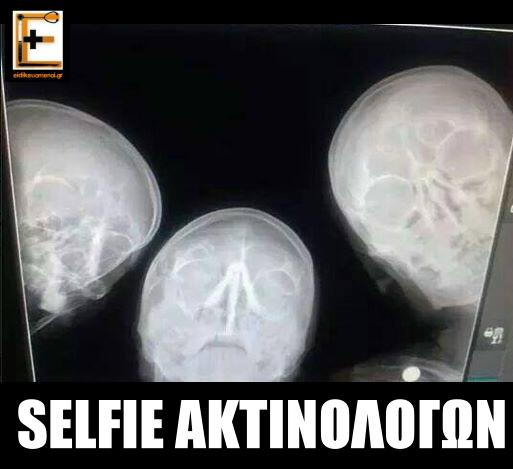 Selfie ακτινολόγων. Ακτινογραφία με τρια κρανία