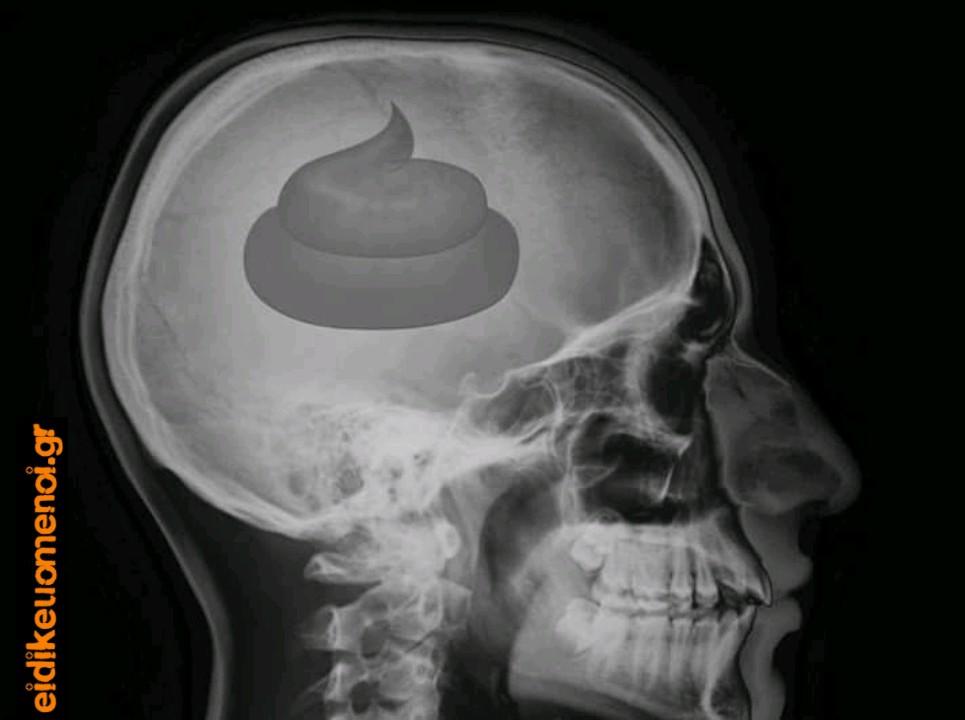 Ακτινογραφία μέσου ψηφοφόρου, έχει κόπρανα κακά σκατά κουράδα μέσα στο κρανίο κεφάλι του