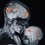 Η νευροχημεία της στοργής