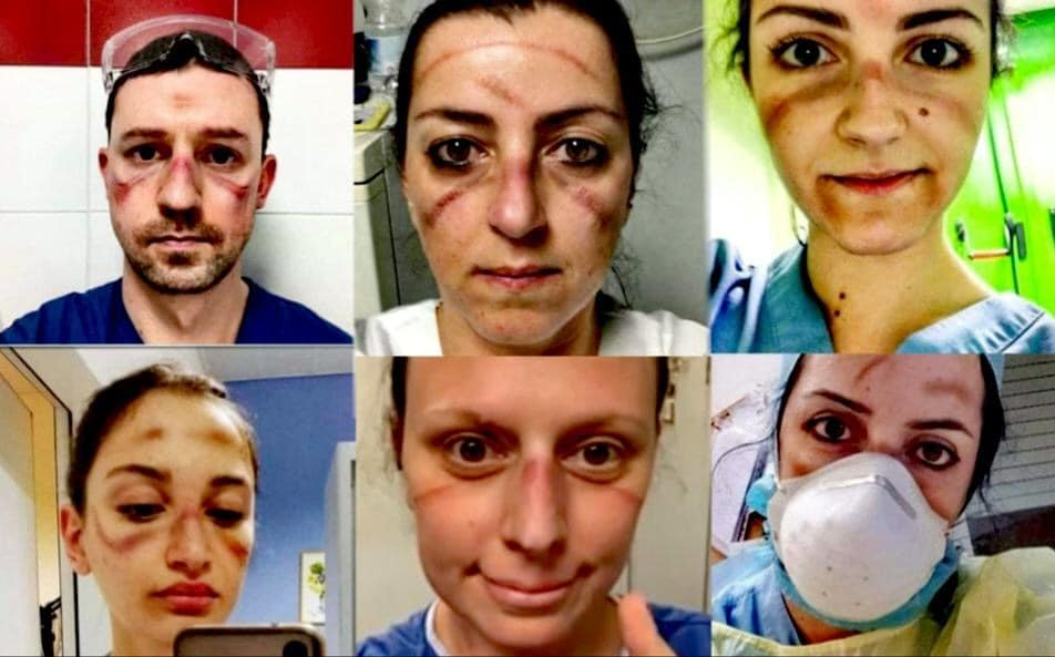 Ιταλοί ειδικευόμενοι και ειδικευμένοι ιατροί και νοσηλευτές με σημάδια και μελανιές από τη χρήση προστατευτικής μάσκας και γυαλιών για τον COVID-19